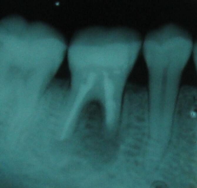 Ακρορριζεκτομή – Παναγιώτης Ηλίδης - Οδοντίατρος Κατερίνη
