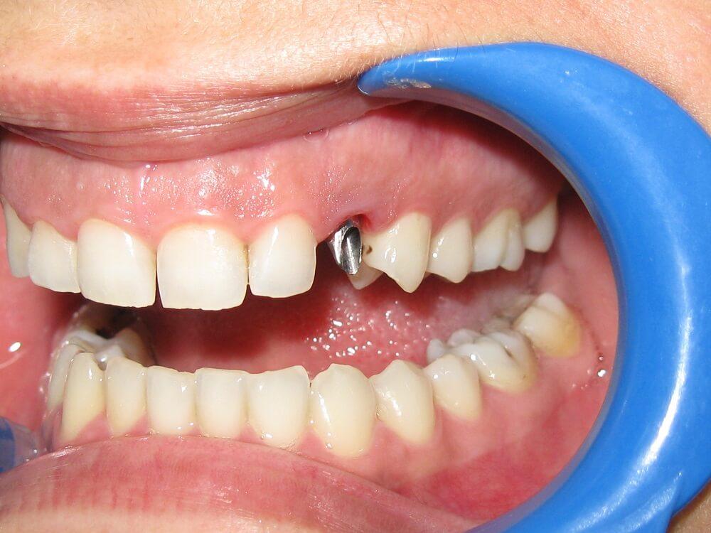 Άμεση αποκατάσταση σε νεογιλό με οδοντικό εμφύτευμα