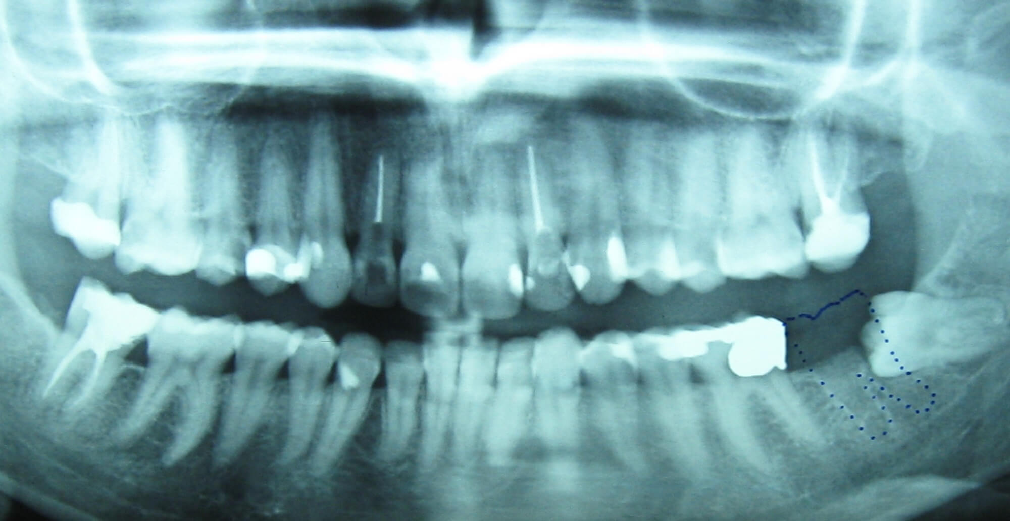 Εξαγωγή έγκλειστου φρονιμίτη - Οδοντίατρος Κατερίνη