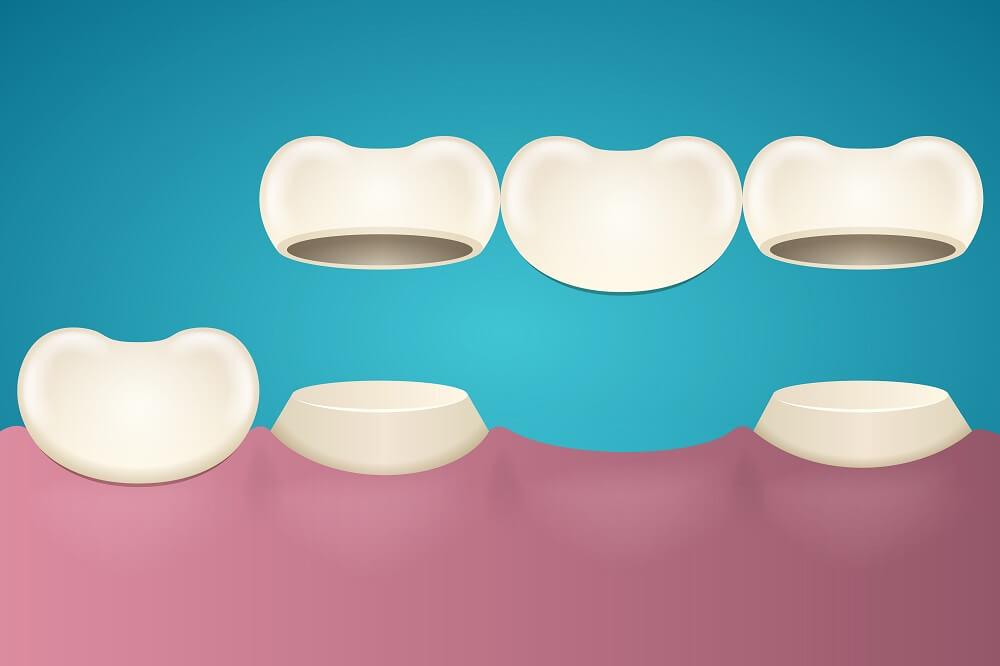 Οδοντικές γέφυρες – Αποκατάσταση δοντιών