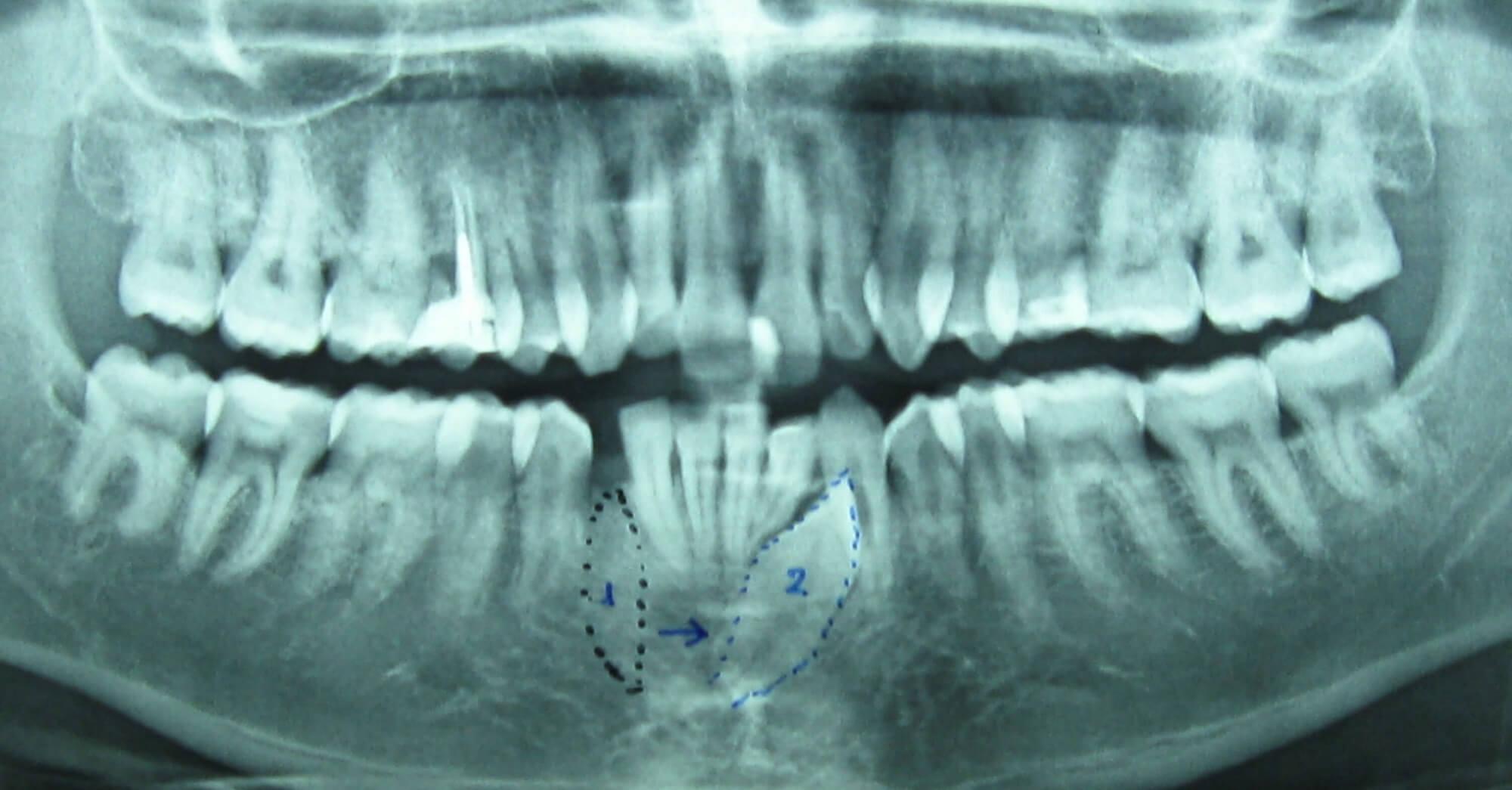 Εξαγωγή έγκλειστου κυνόδοντα - Οδοντίατρος Κατερίνη