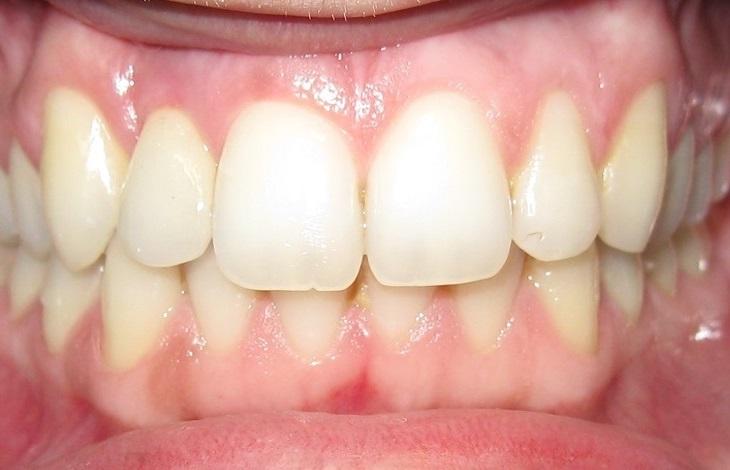 Οδοντικά εμφυτεύματα - Περιστατικά - Οδοντίατρος Κατερίνη - Παναγιώτης Ηλίδης