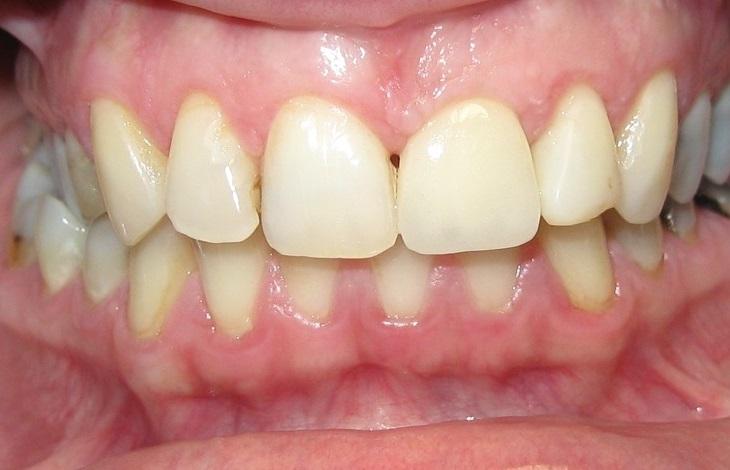 Εμφυτεύματα δοντιών - Περιστατικά - Οδοντίατρος Κατερίνη - Παναγιώτης Ηλίδης
