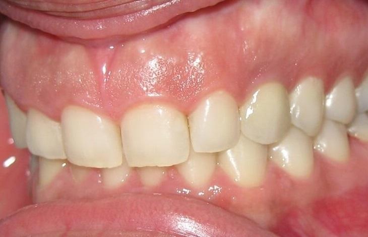 Αποκατάσταση με εμφυτεύματα δοντιών - Οδοντίατρος Κατερίνη - Παναγιώτης Ηλίδης