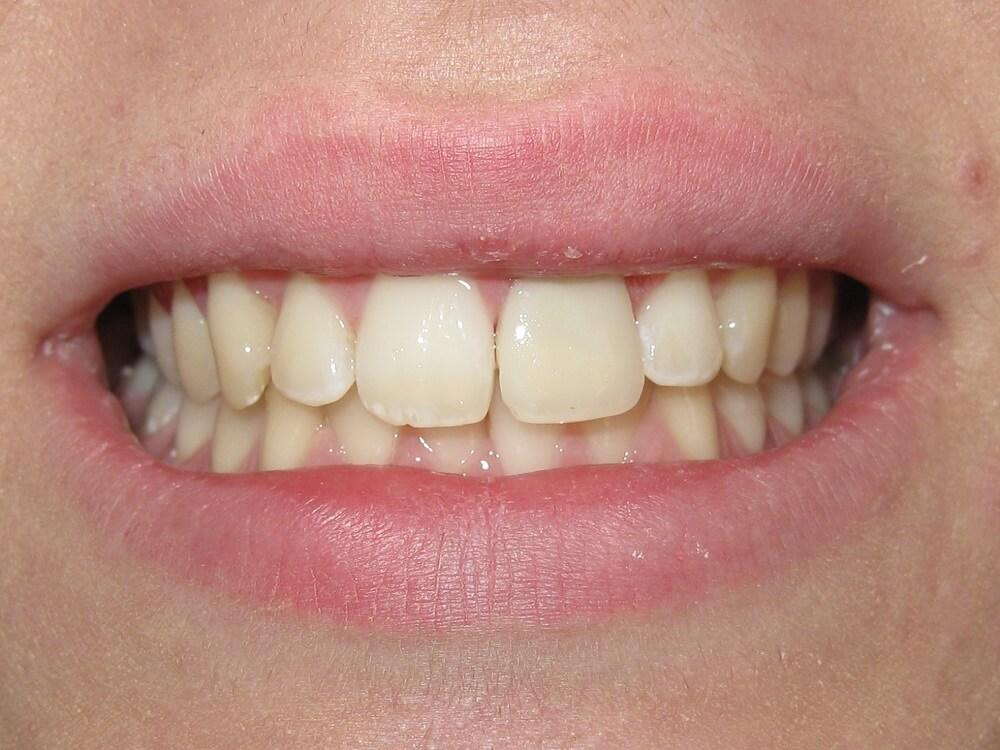 Όψεις ρητίνης σε απονευρωμένο δόντι