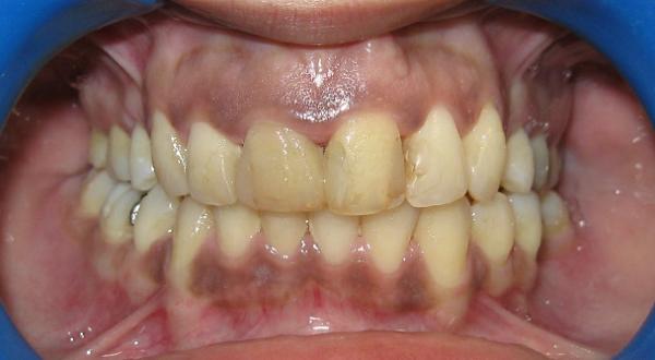 Όψεις ρητίνης σε δυσχρωμικά δόντια